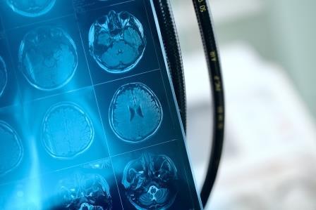 Künstliche Intelligenz: Verschiedene Einsatzbereiche in der Medizintechnik