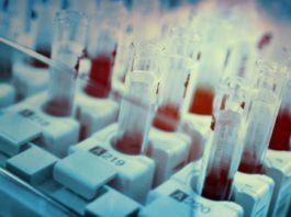 Earlybird führt Finanzierungsrunde von Biotech-Start-up an