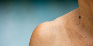 BayBG und MIG investieren in Hautkrebsdiagnosespezialisten: NeraCare meldet Abschluss einer Series A-Finanzierungsrunde